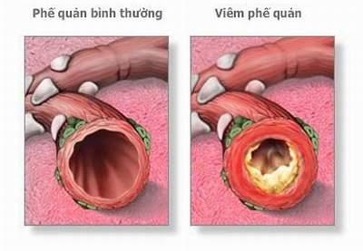 Tình trạng viêm phế quản làm phế quản bị thu hẹp bởi dịch nhầy, gây khó lưu thông khí cho bệnh nhân