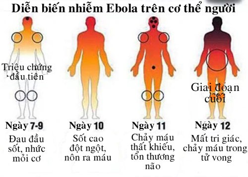 Triệu chứng bệnh do virus Ebola