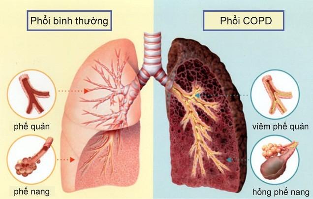 Bệnh phổi tắc nghẽn mãn tính COPD và những điều cần biết