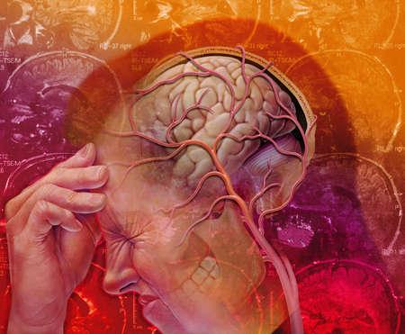 Bệnh đau nửa đầu được giải thích theo những cơ chế có liên quan đến chất gây viêm và sự co giãn của mạch máu não