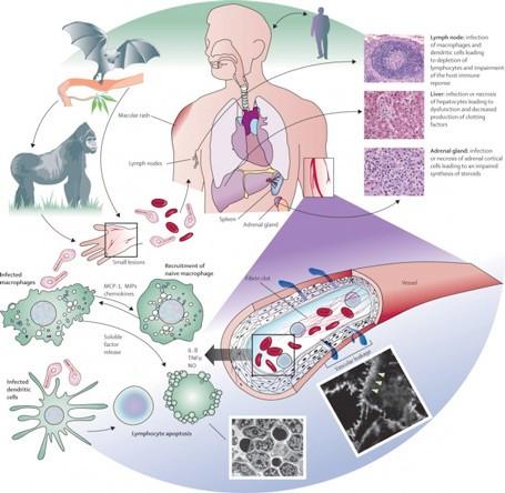 Lây truyền virus Ebola trong cộng đồng