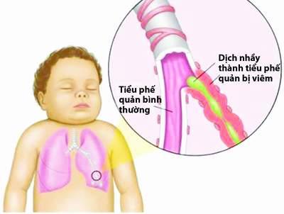 Mùa mưa, tỷ lệ trẻ em mắc viêm phế quản tăng mạnh